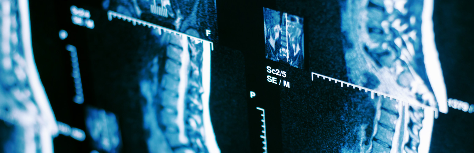 MINIMALLY INVASIVE SPINE SYSTEMS