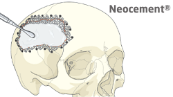 Neocement cranioplasty